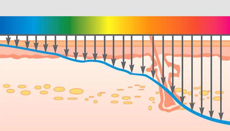 Принцип действия фракционного фототермолиза